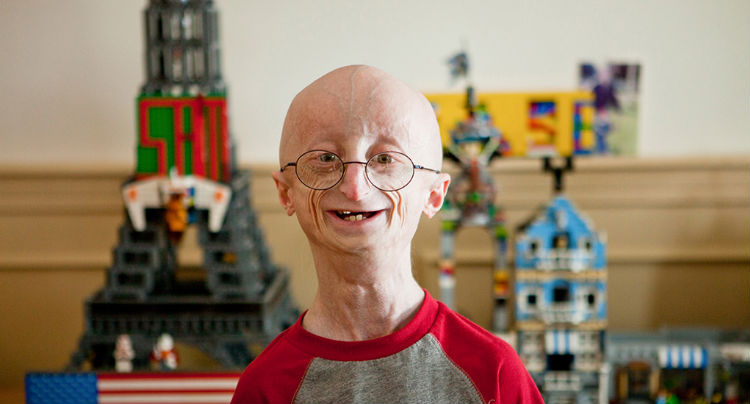 Sam Berns, Subject of 'Life According to Sam', Dies at 17